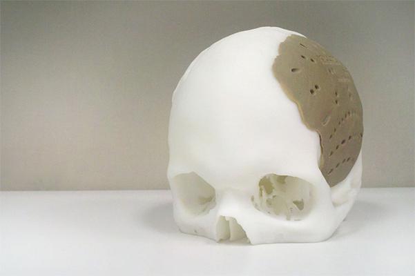 A technológiát bemutató minta protézis