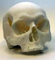 3D nyomtatott koponya