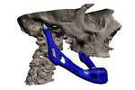 Xilloc_bone_implant_kiemelt